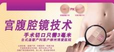 宫腹腔镜技术广告图片