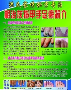 灰指甲 宣传单