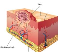 人体表皮剖面图片
